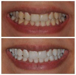 Îți dorești dinți mai albi? Iată ce trebuie să știi!